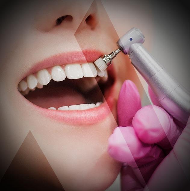 Blanchiment dentaire prix Turquie