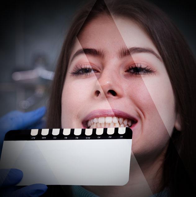 facette dentaire Turquie